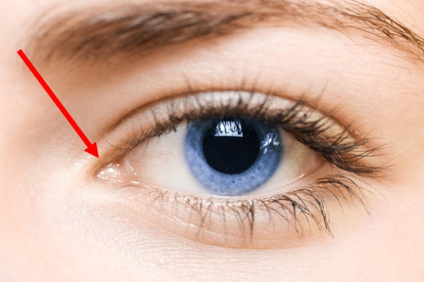 Lacrimal caruncle - The small, pink nodule on the inner corner of the eye.